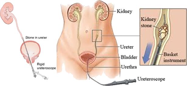 Kidney Stones Treatment In Vijayawada Best Kidney Stone Surgery Kk Hospitals